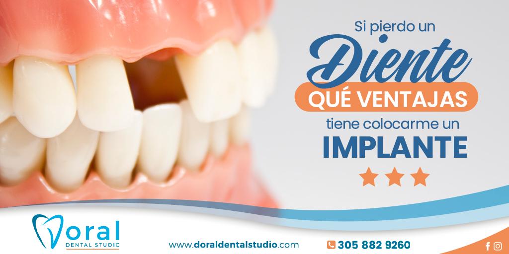 Si pierdo un diente, ¿qué ventajas tiene colocarme un implante?