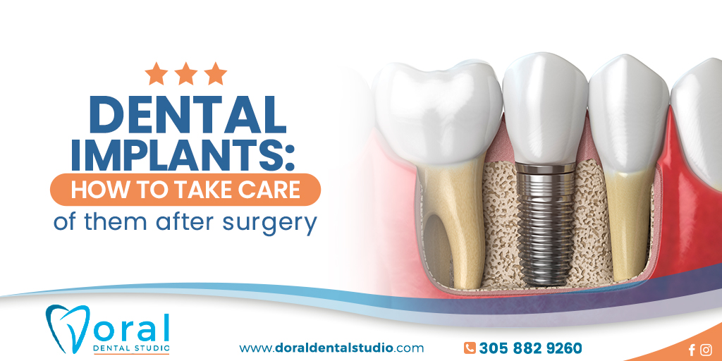 Dental implants: How to take care of them after surgery