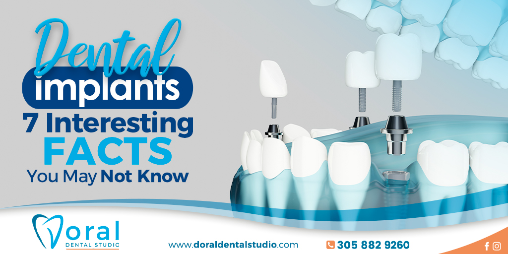 Dental Implants – 7 Interesting Facts You May Not Know